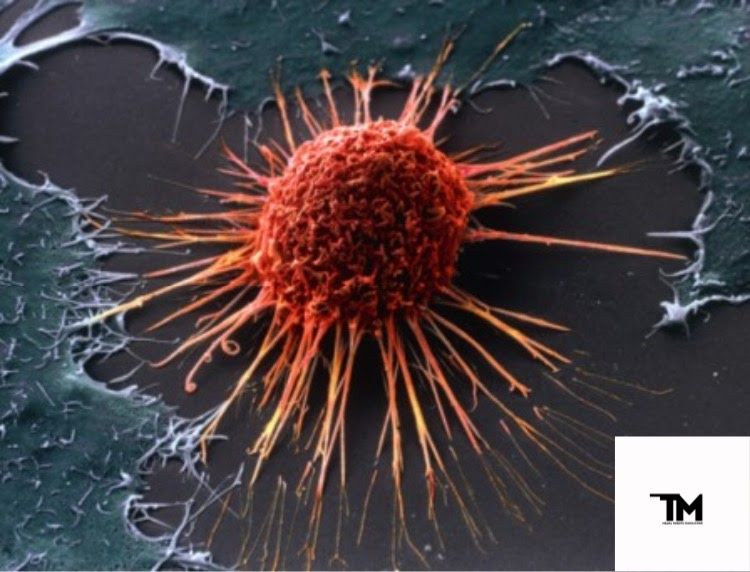 Как вылечить рак? Новые способы